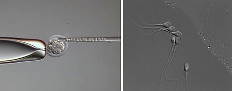 Integrovaný modulační kontrast na mikroskopu Leica DMi8