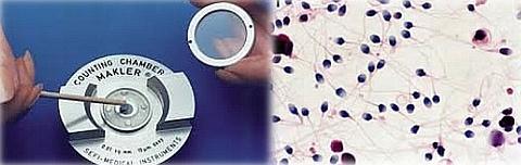Mikroskopy lze vybavit speciálním nosičem pro Maklerovy komůrky