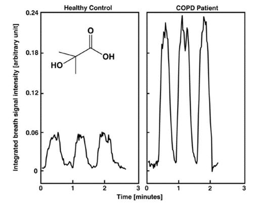 Real-time monitorování 2-hydroxybutanové kyseliny